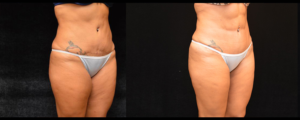 Six Pack Abs Before & After Patient #1125