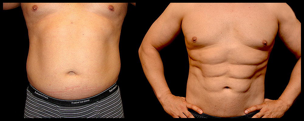Six Pack Abs Before & After Patient #1121