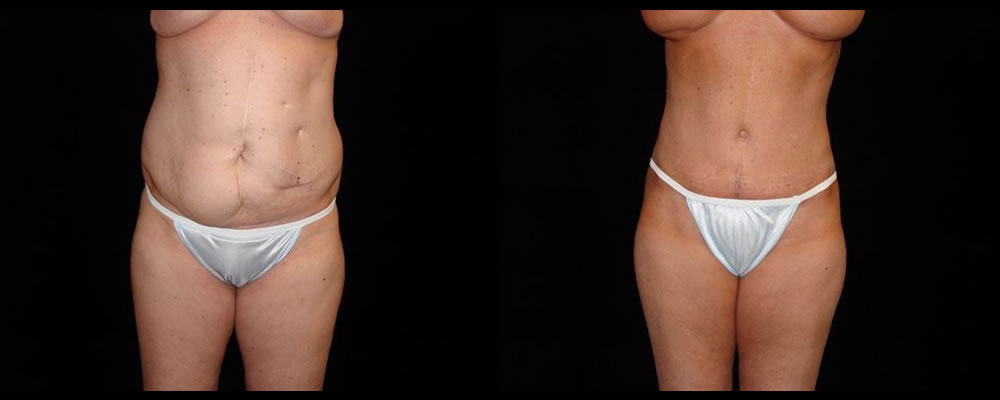 Tummy Tuck Before & After Patient #608