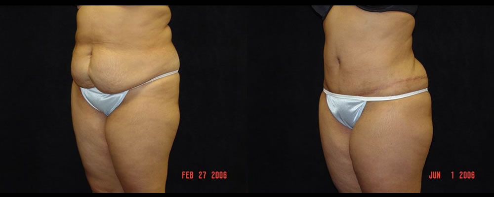 Tummy Tuck Before & After Patient #575