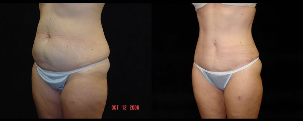 Tummy Tuck Before & After Patient #571