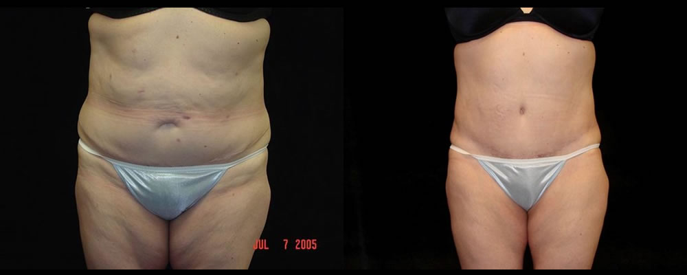 Tummy Tuck Before & After Patient #567