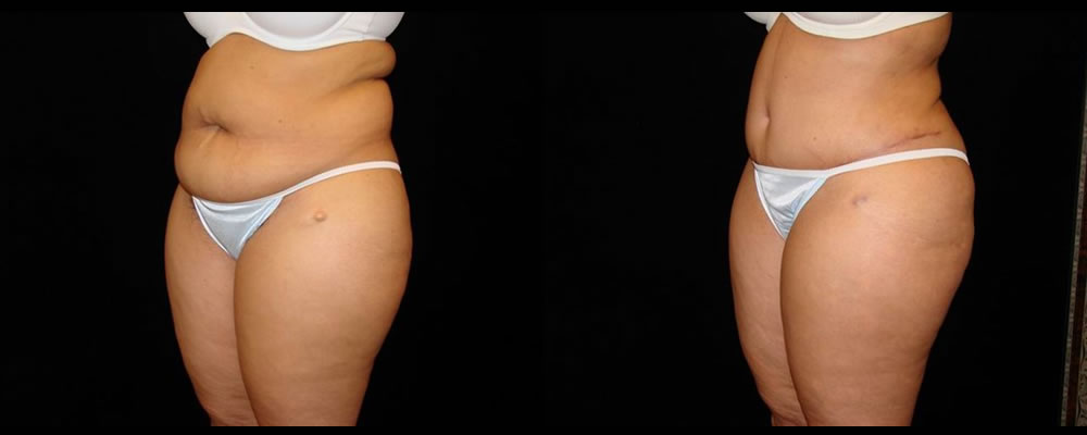 Tummy Tuck Before & After Patient #559