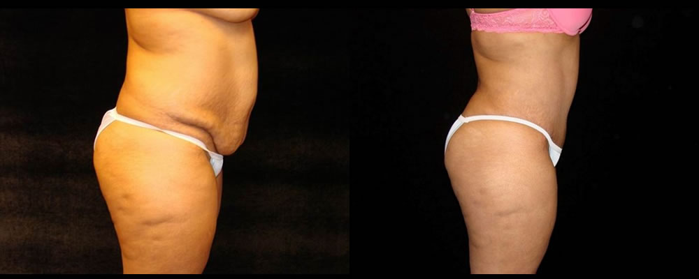 Tummy Tuck Before & After Patient #555