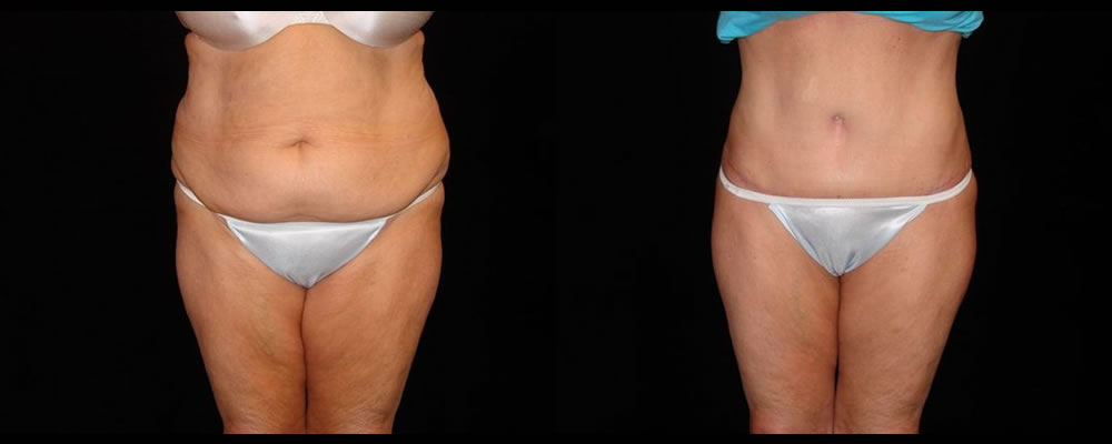 Tummy Tuck Before & After Patient #551