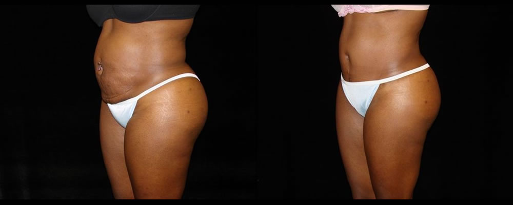 Tummy Tuck Before & After Patient #547