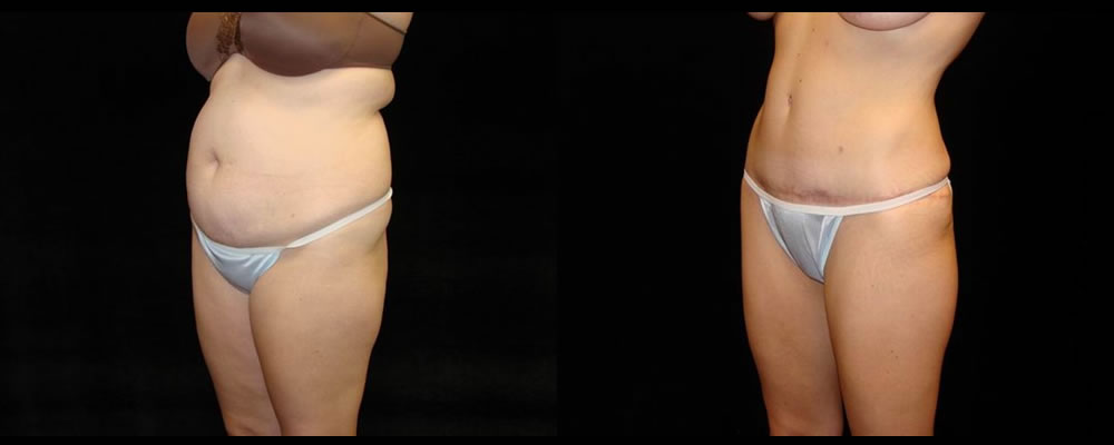 Tummy Tuck Before & After Patient #543
