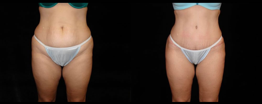 Tummy Tuck Before & After Patient #539