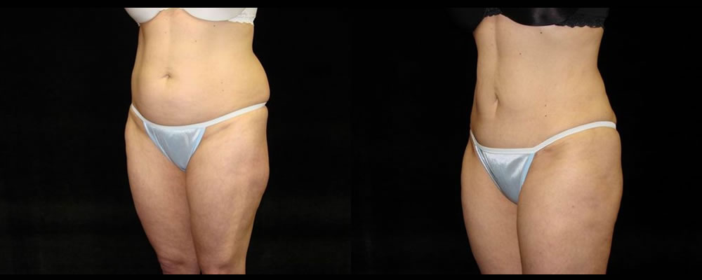 Tummy Tuck Before & After Patient #604