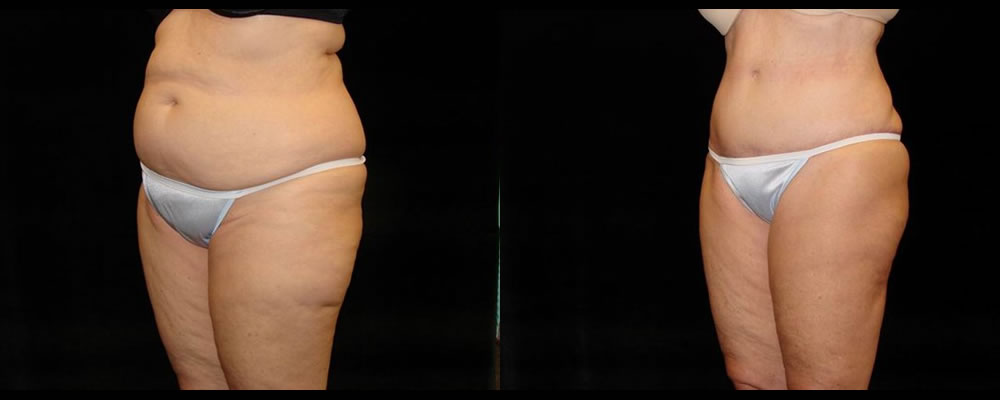 Tummy Tuck Before & After Patient #527