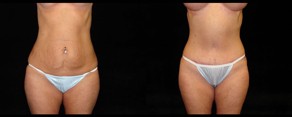 Tummy Tuck Before & After Patient #523