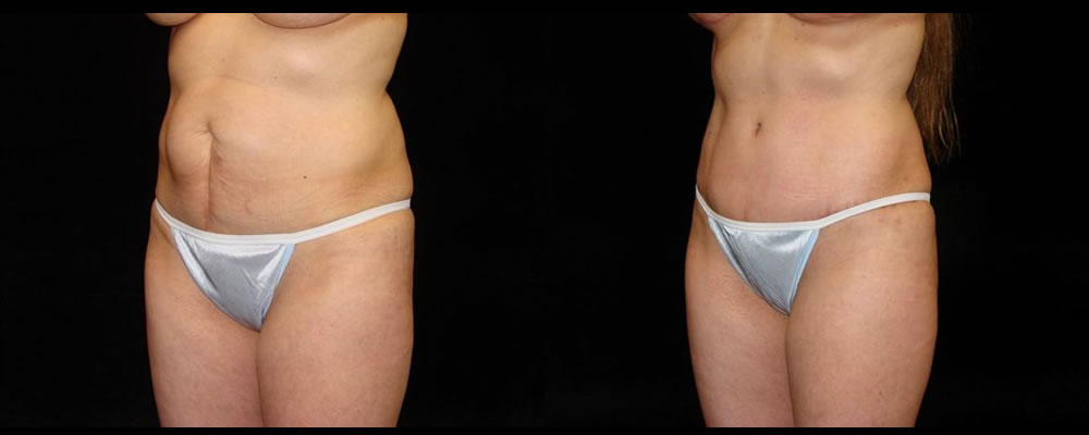 Tummy Tuck Before & After Patient #519