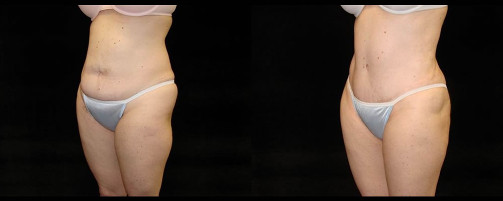Tummy Tuck Before & After Patient #515