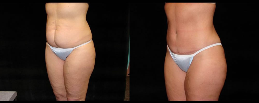 Tummy Tuck Before & After Patient #511