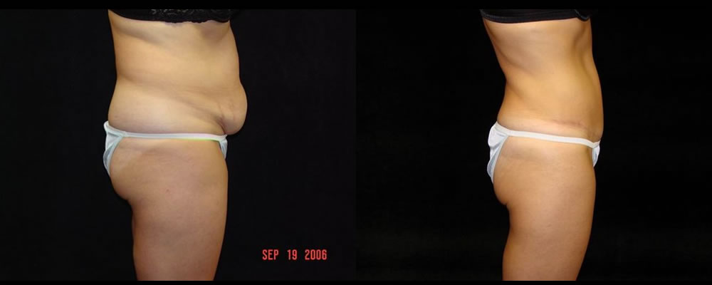 Tummy Tuck Before & After Patient #503