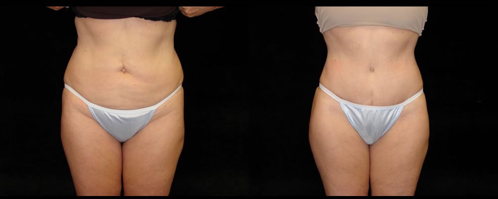Tummy Tuck Before & After Patient #495