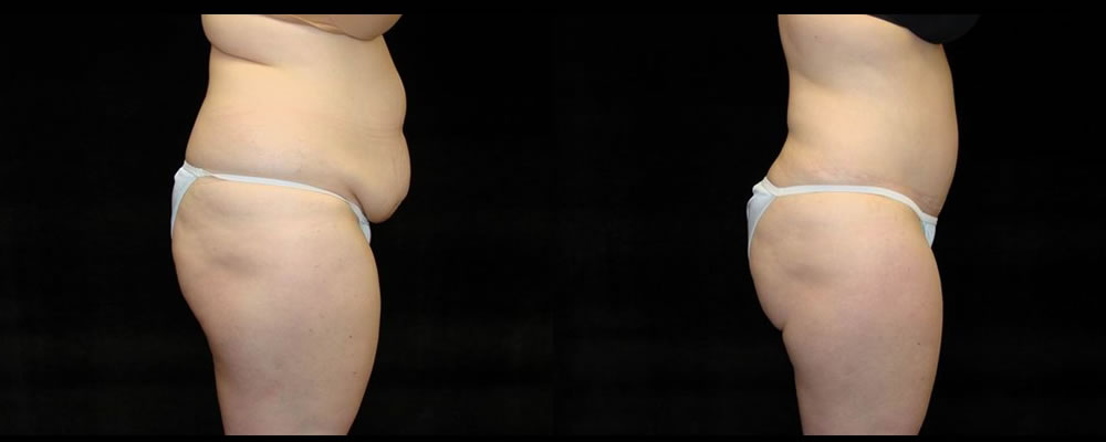 Tummy Tuck Before & After Patient #491