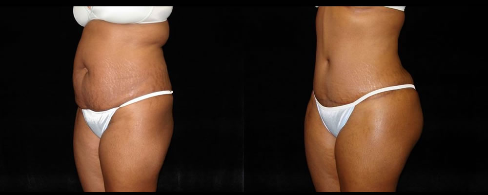 Tummy Tuck Before & After Patient #487