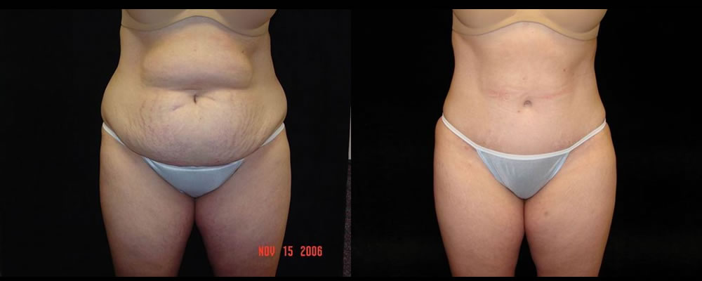 Tummy Tuck Before & After Patient #483