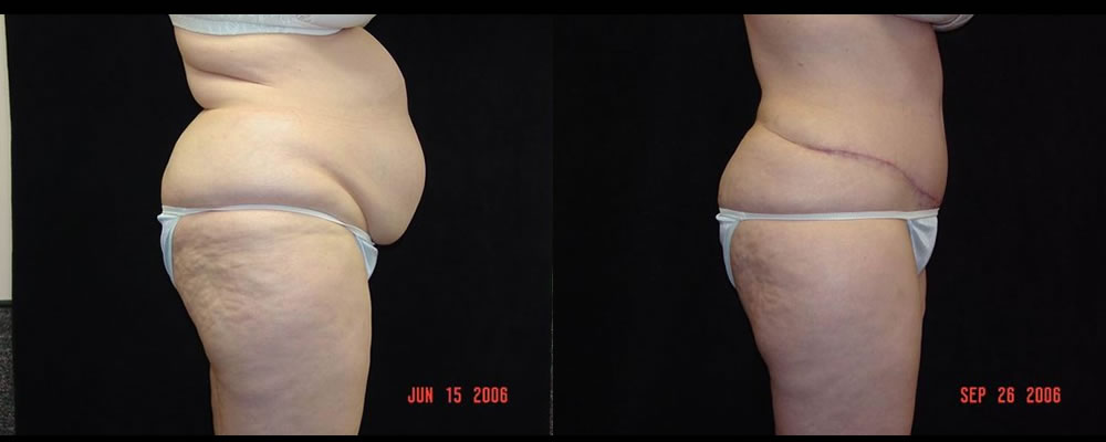 Tummy Tuck Before & After Patient #479