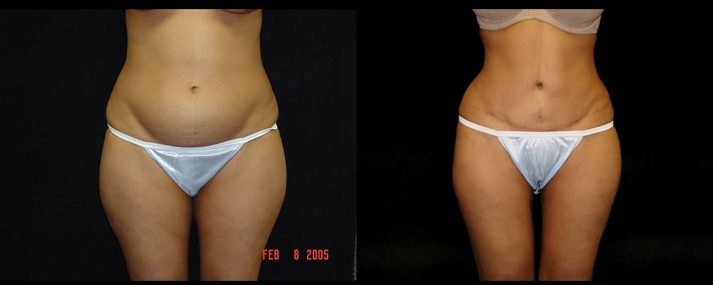 Tummy Tuck Before & After Patient #475