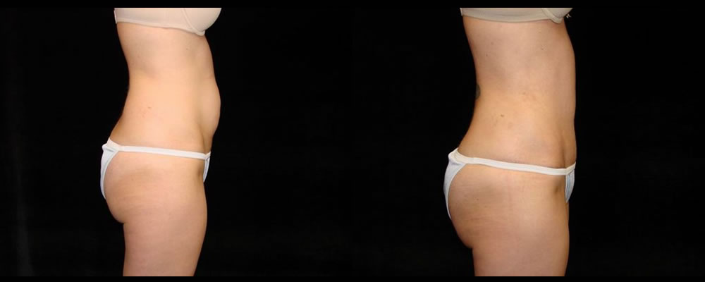 Tummy Tuck Before & After Patient #467