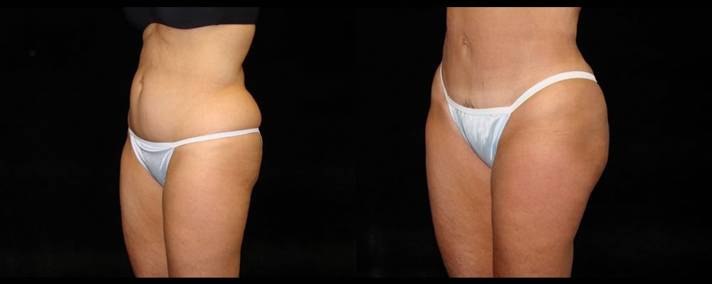 Tummy Tuck Before & After Patient #459