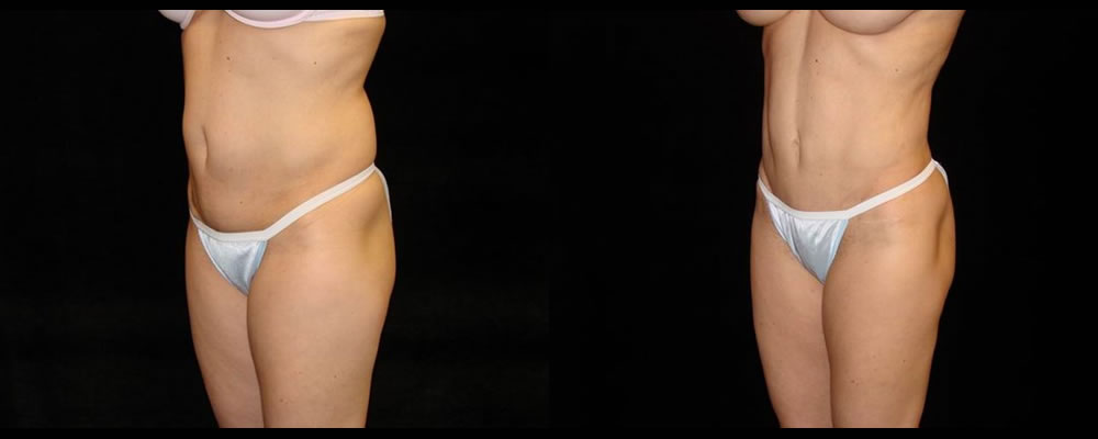 Tummy Tuck Before & After Patient #596