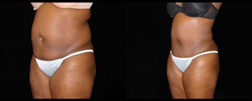 Tummy Tuck Before & After Patient #451
