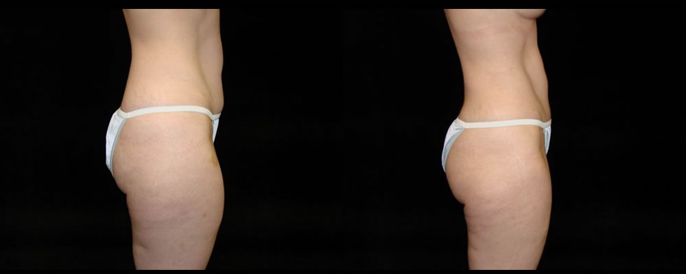 Tummy Tuck Before & After Patient #447