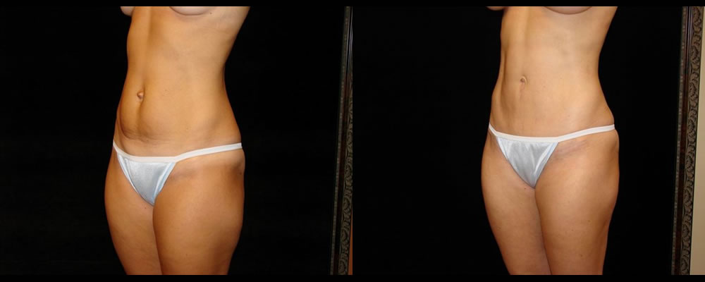 Tummy Tuck Before & After Patient #592