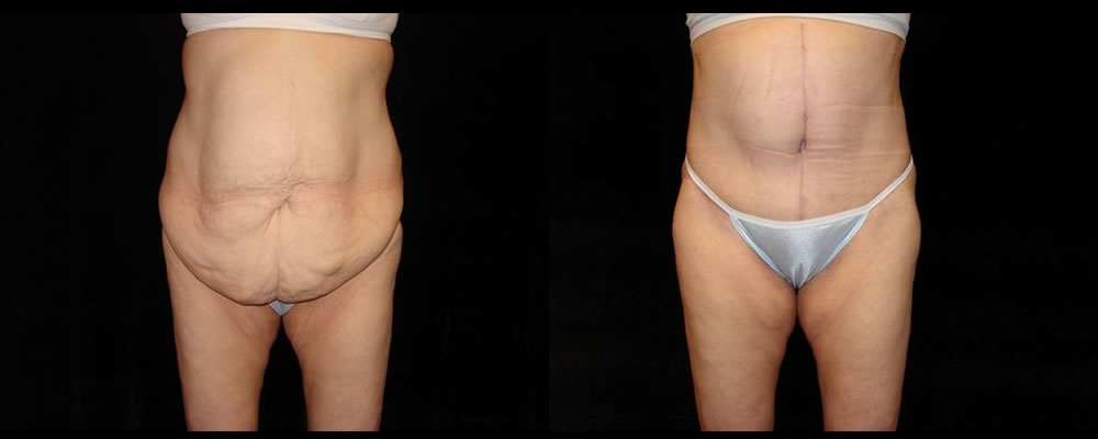 Tummy Tuck Before & After Patient #587