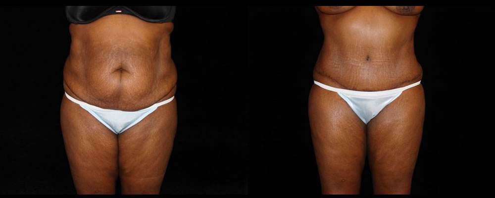 Tummy Tuck Before & After Patient #579