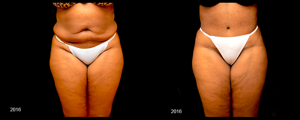 Tummy Tuck Before & After Patient #443