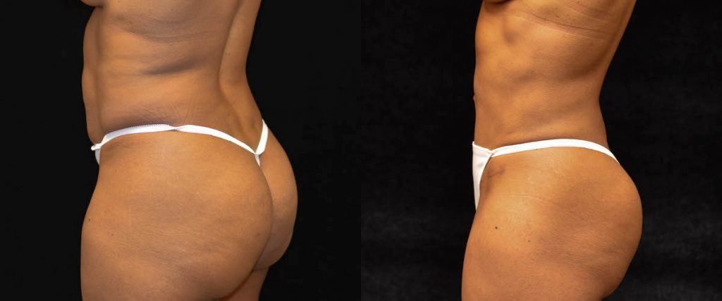Tummy Tuck Before & After Patient #1837