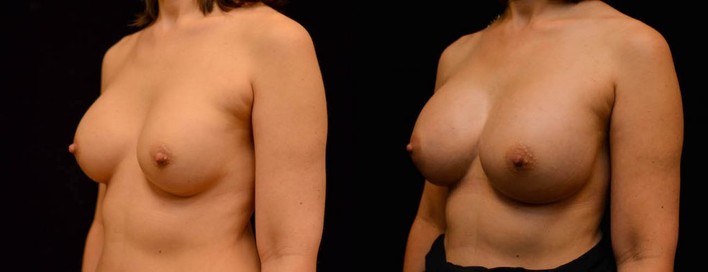Breast Augmentation Before & After Patient #1842