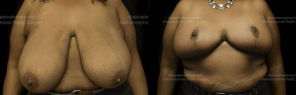 Breast Reduction Before & After Patient #1860