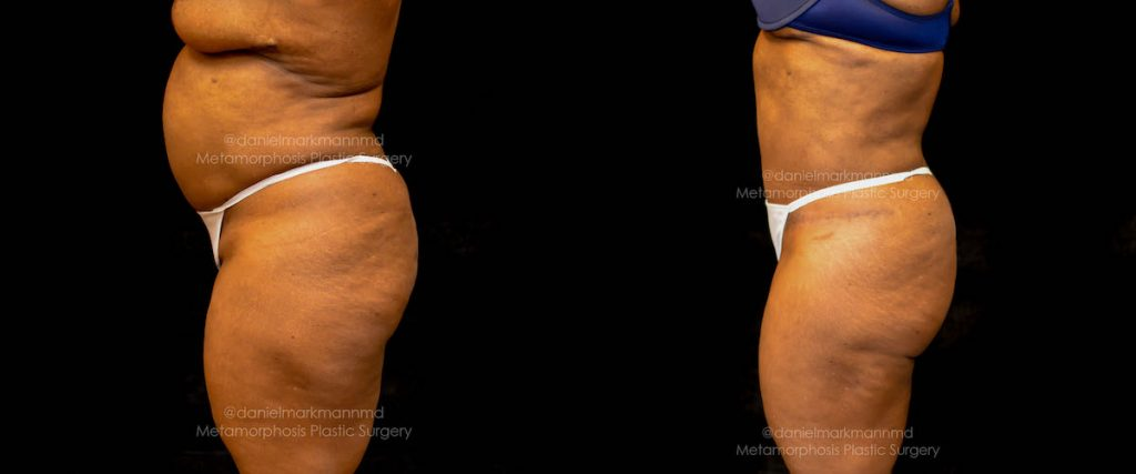 Tummy Tuck Before & After Patient #1865