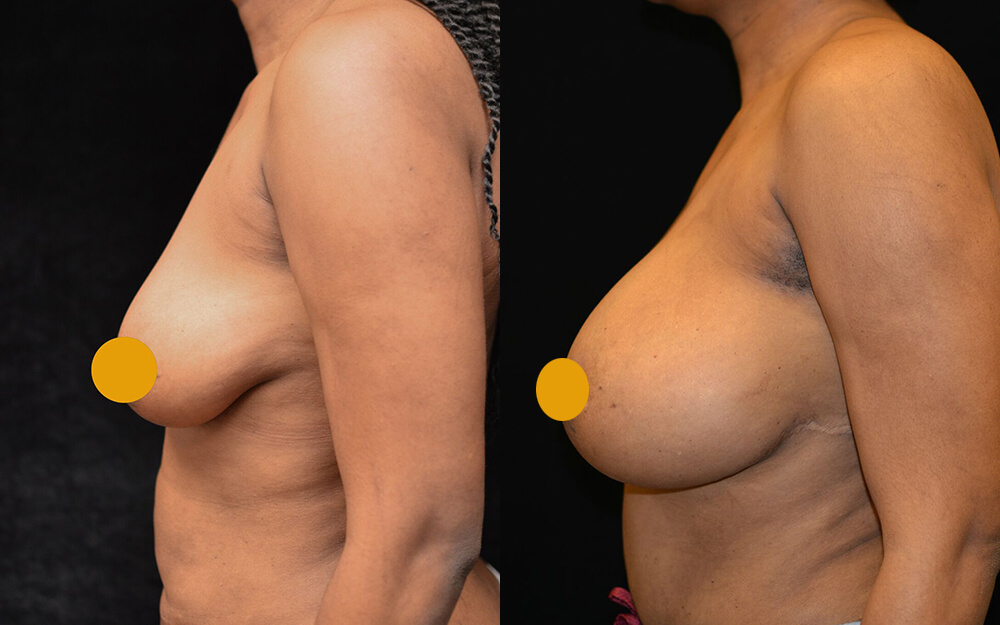 Breast Augmentation Before & After Patient #2108