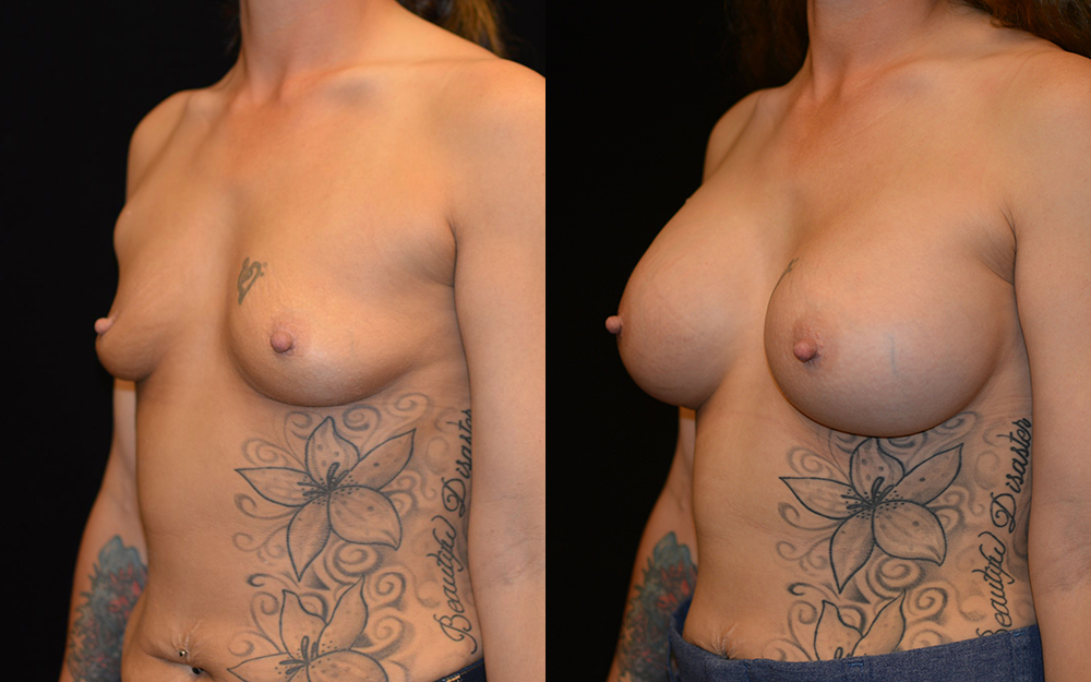 Breast Augmentation Before & After Patient #2111