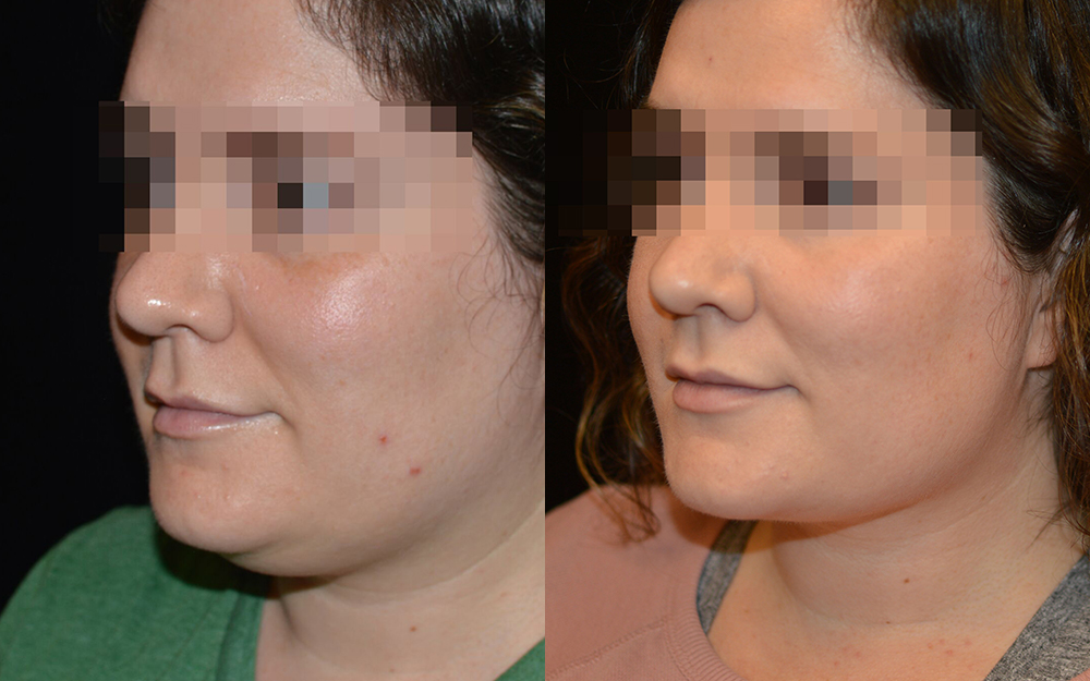 Chin Liposuction Before & After Patient #2114