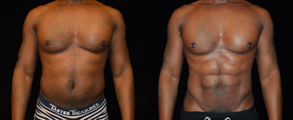 Six Pack Abs Before & After Patient #2119