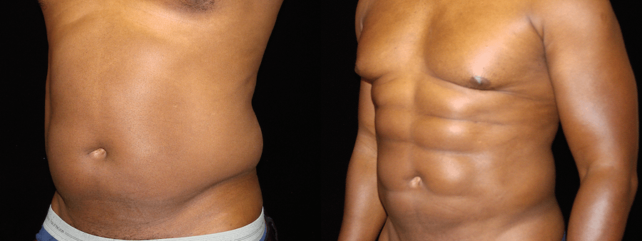 Six Pack Abs Before & After Patient #2129