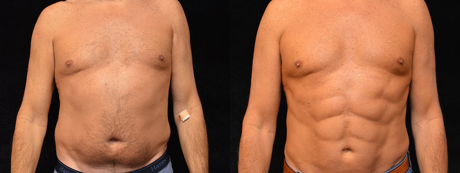 Six Pack Abs Before & After Patient #2135