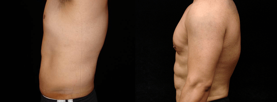 Six Pack Abs Before & After Patient #2139