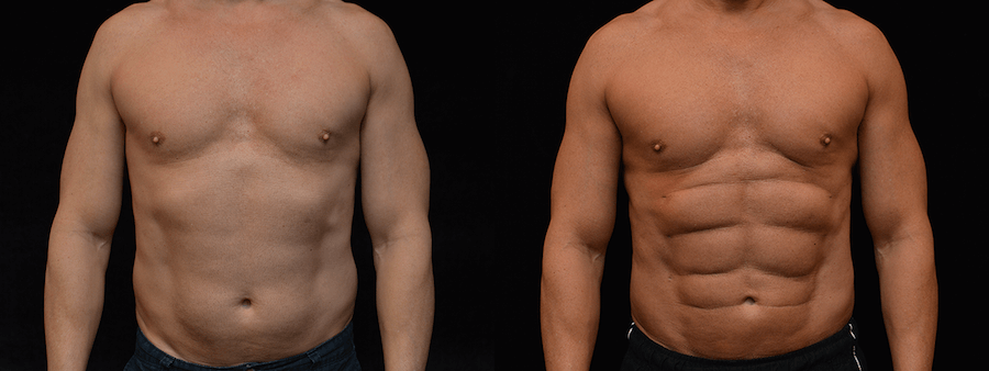 Six Pack Abs Before & After Patient #2143