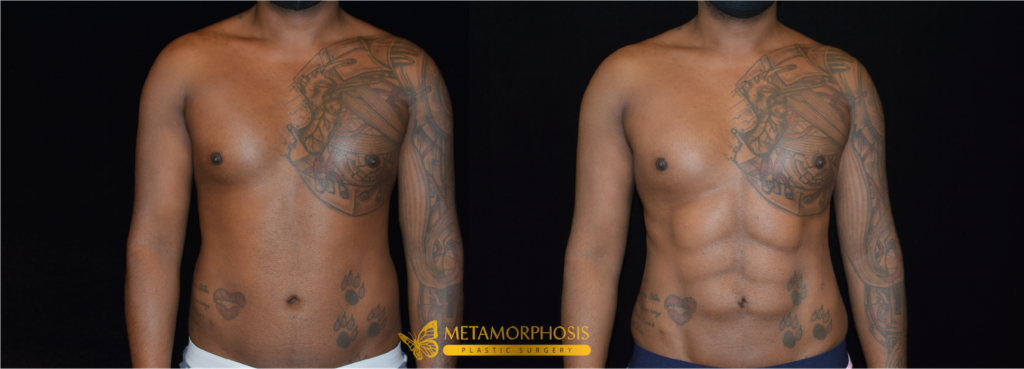 Six Pack Abs Before & After Patient #2282